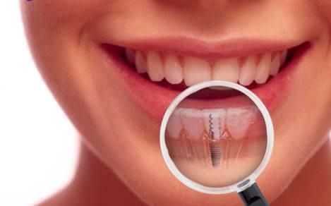 Zahnimplantate in Ungarn bei Moritz Dental Zentrum