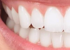 Zahnkrone von Keramik und Metall bei Moritz Dental Zentrum