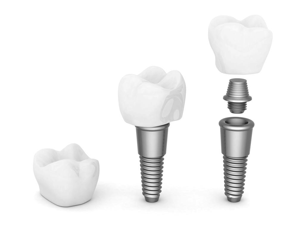 Ist ein Zahnimplantat schmerzhaft