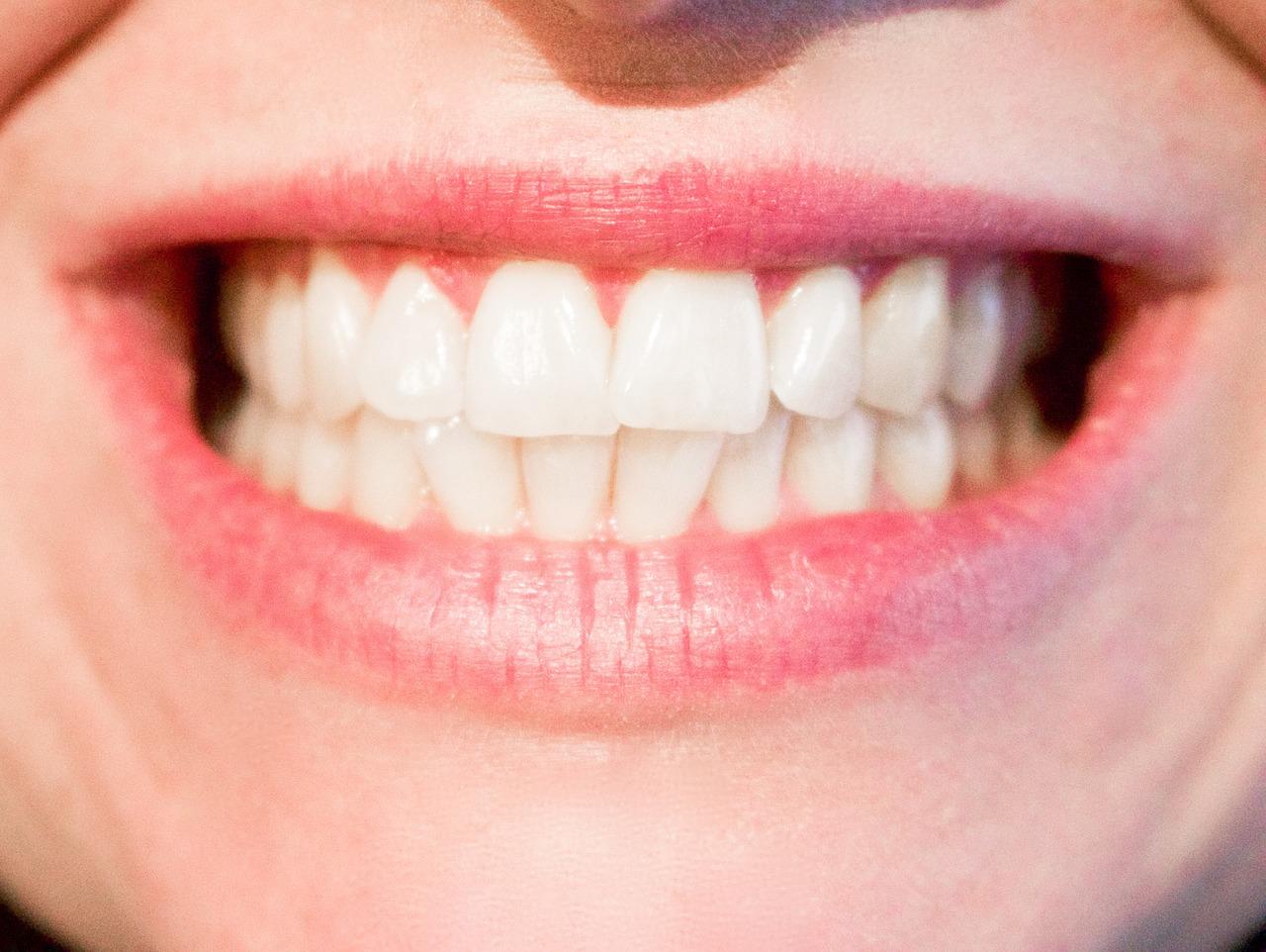 veneers - Keramikfacette Ungarn bei Moritz Dental Zentrum